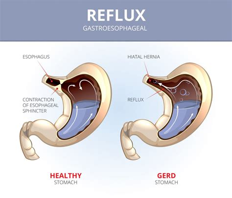 Dealing With Baby Acid Reflux Baby Now Brand