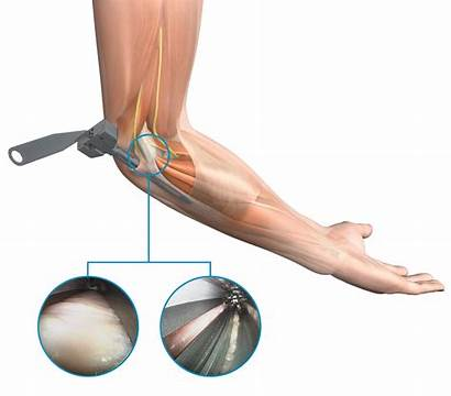 Release Tunnel Cubital Endoscopic Medical Ligament