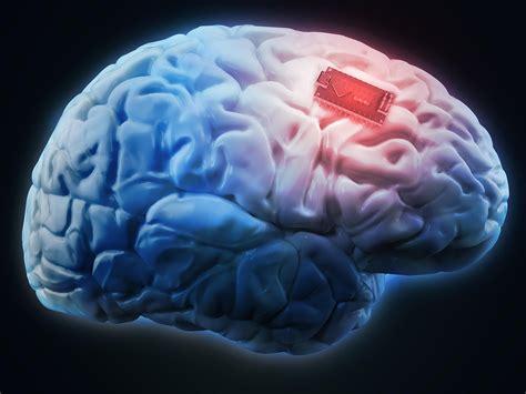qa  ethics   brain implants  upgrade