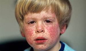 Measles outbreaks hit 18-year high as effects of MMR ...