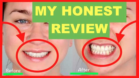 Opulence Teeth Whitening 20 by Charcoal Teeth Whitening Powder Review 2017 Before And