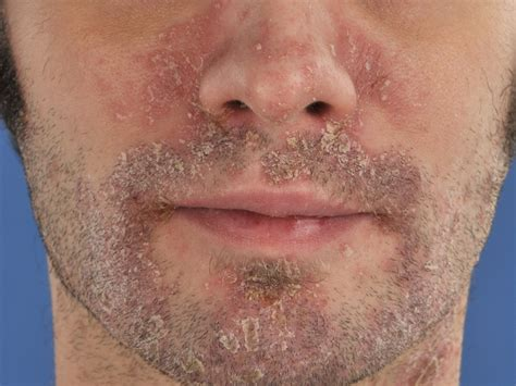 eczema seborroicum psoriatiforme sebopsoriasis