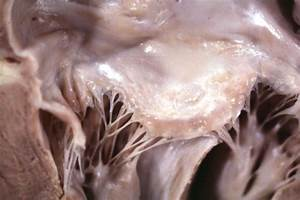 Hypertrophic Cardiomyopathy Gross Pathology