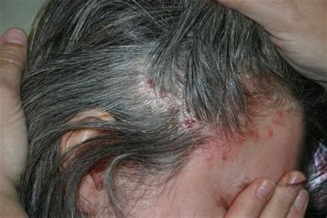 I have scalp psoriasis