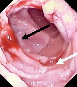 Gastroscopy Demonstrated Large Villous Adenoma Of The 2nd Part Of The