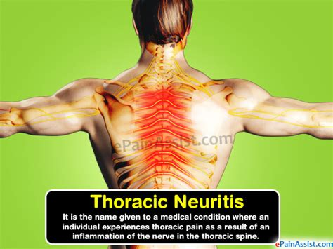 Thoracic Neuritiscausessymptomstreatmenthome Remedies. San Luis Obispo Beauty College. Auto Insurance Definitions Back To Basics Com. Orchid Treatment Center Inventory Control App. Commercial Roofing Dallas Tx. Village Pizza Redondo Beach Hand Truck Ramps. Law Schools In Washington Dc. Rutgers Masters In Accounting. Northern Virginia Hvac Strange Mormon Beliefs