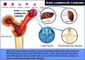 Acute Lymphocytic Leukemia-Prognosis-Survival Rate-Treatment-Diagnosis Leukemia
