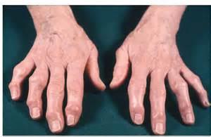 Severe Osteoarthritis Hands