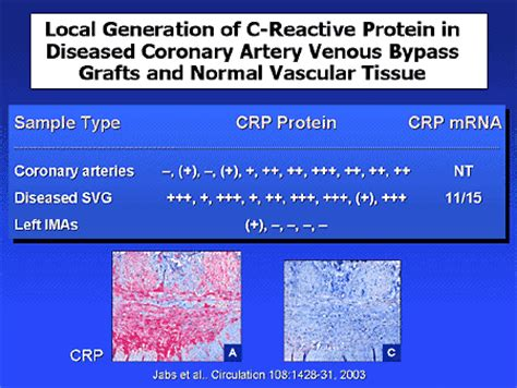 c reactive protein normal