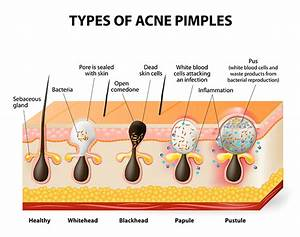 Acne  Is It Your Hormones Or Your Diet