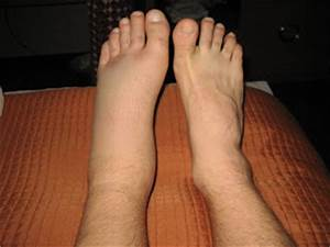 The Sotelo Family: A bad sprained ankle!
