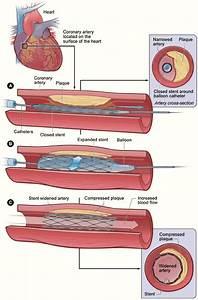 Angiogram and stent procedure