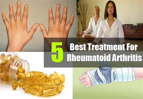best treatment for rheumatoid arthritis 5 best treatment for rheumatoid arthritis arthritis