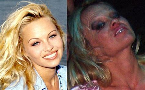 celebrities  destroyed  faces  drugs