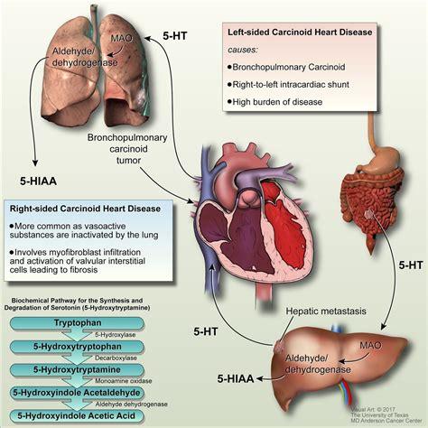 Neuroendocrine Cancer carcinoid heart disease heart 1278 x 1280 · jpeg