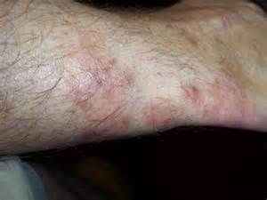 Itchy Rash On Lower Legs above Ankles