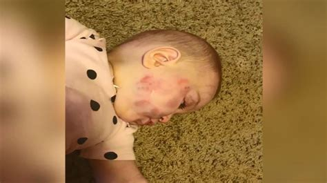 Montana Police investigating after infant suffers facial ...
