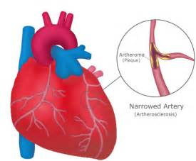Medical Pictures Info – Coronary Heart Disease Cardiovascular Diseases And Disorders