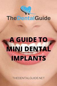 A Guide To Mini Dental Implants