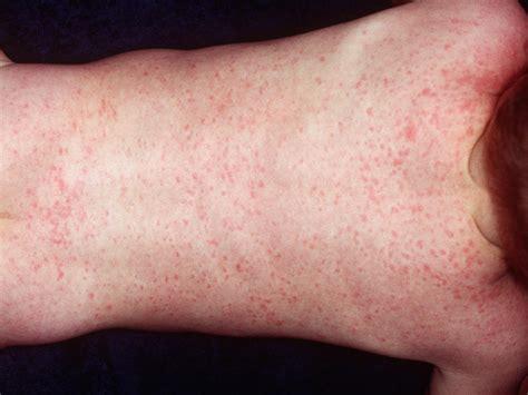 Eczema Skin Rashes In Babies Newhairstylesformen2018com