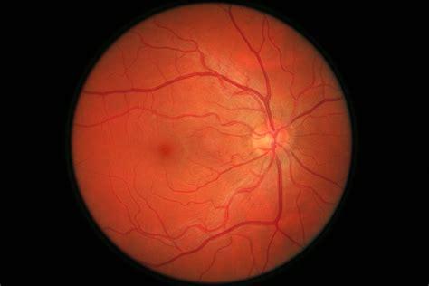 eye retina scan hobbsluton flickr