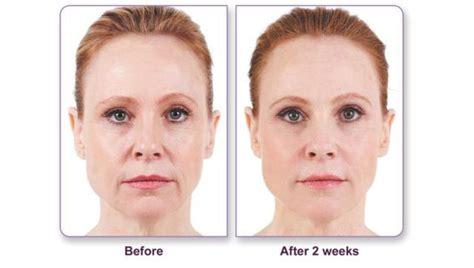 juvederm  surgical wrinkle treatment  york city