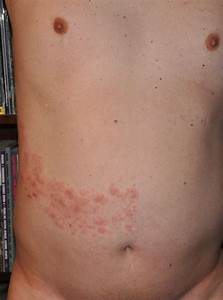 topical pain relief cream for shingles