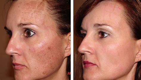 AGE SPOT REMOVAL GALLERY | Skin Rejuvenation Clinic