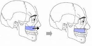 Position hto vysoká osteotomie tibie