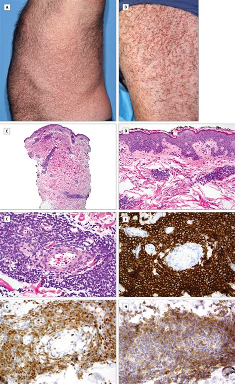 disseminated mantle cell lymphoma presenting