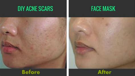 get rid of acne scars spots fast at home flawless skin diy mask