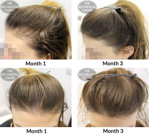 baldness treatment hair loss