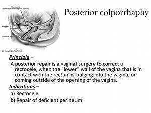 Conservative Surgeries For Genital Prolapse