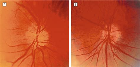 Recurrent Visual Field Defect And Ischemic Optic