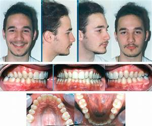 Invisalign Before And After Crossbite | www.imgkid.com ...
