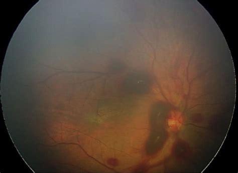 findings  perinatal ocular examination performed