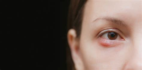 eye stye abscess pain caused infections skin there know styes face injuries types check health rid boil infection causes infected