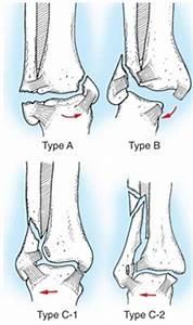 Боль в голеностопный сустав отек
