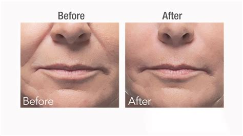 Best dermal filler