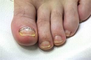 Ламизил спрей от грибка ногтей отзывы цена в