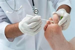 Лечение грибка ногтя дегтярным мылом