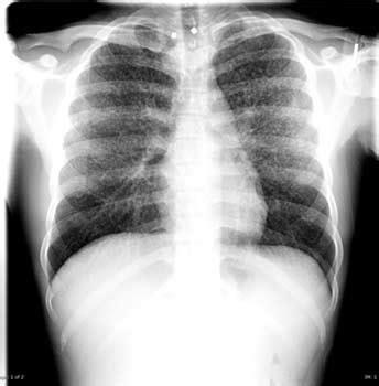 spots   lungspulmonary nodules   spots