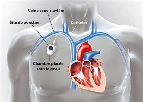 ablation chambre implantable chambre implantable ramsay générale de santé nos offres