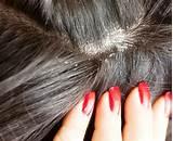 Потенция и выпадение волос