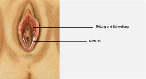 scheidenentzuendung vaginitis kolpitis
