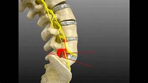 Spinal Adjustment Treatment For L4  L5 Fixation Causing
