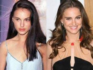 Natalie Portman Nose Job Botox Facial Surgery