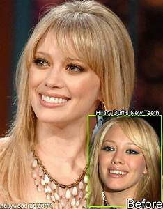 Hilary Duff - Teeth and Bones. - Oh No They Didn't! Page 4