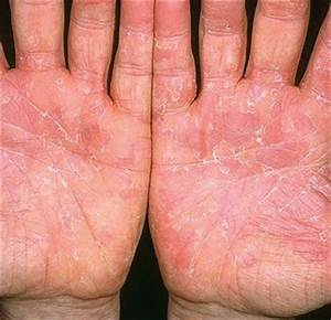 psoriasis fingers treatment