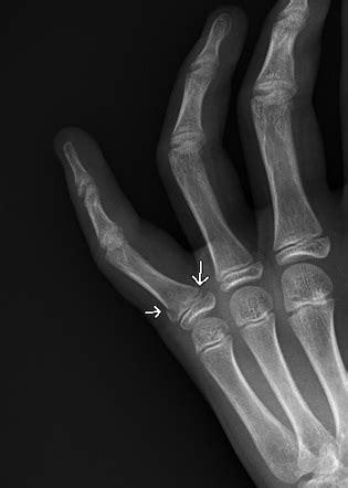 Salter-Harris type II fracture: finger | Image